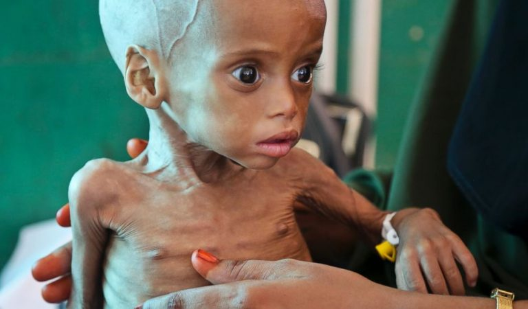Malnutrition: What it is, symptoms, consequences and treatment