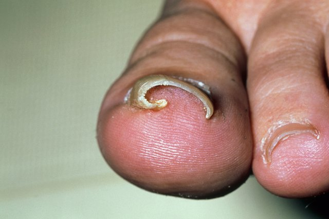 How to treat an ingrown nail at home