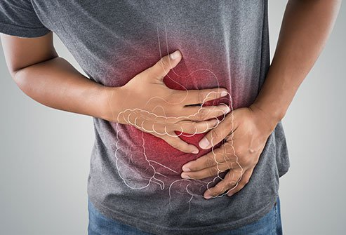 Crohn's disease syndrome and the process of diagnosis