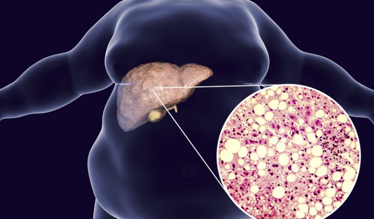 4 Home Remedies for Liver Fat