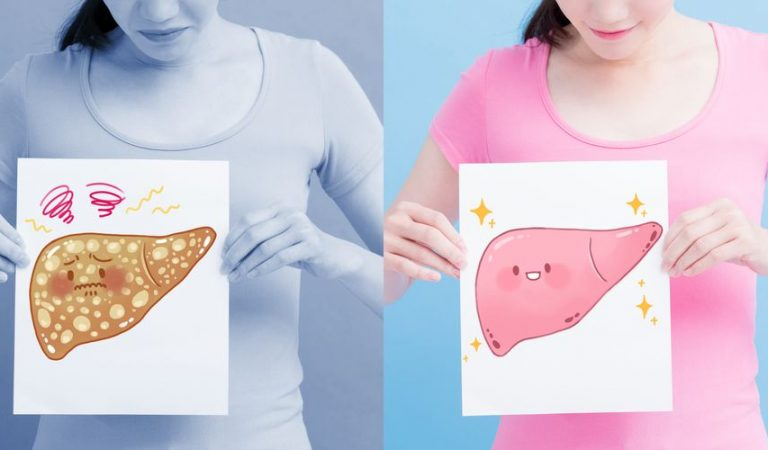 Diet for fat in the liver