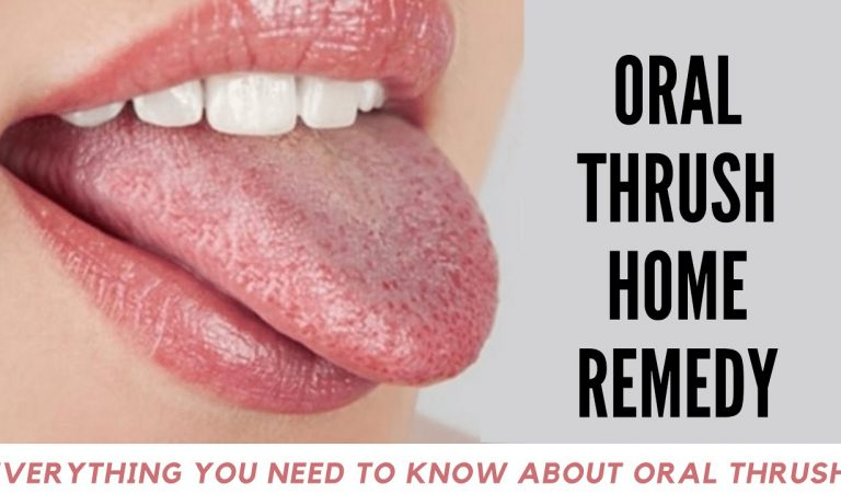 5 secure tips to quickly relieve thrush