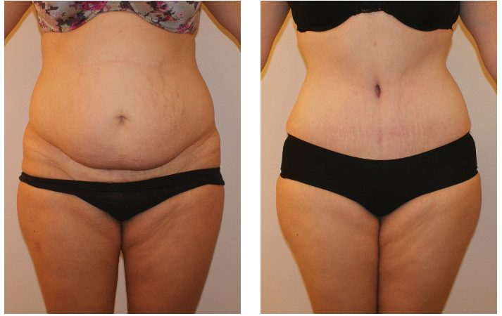 6 types of plastic surgery for a smooth belly