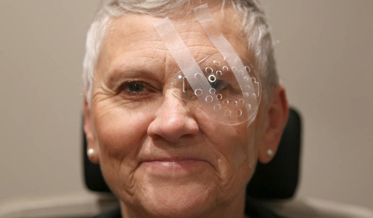 How is the recovery from cataract surgery and how is it done?
