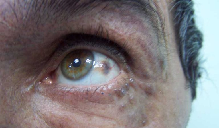 Alcaptonuria: What it is, symptoms and treatment