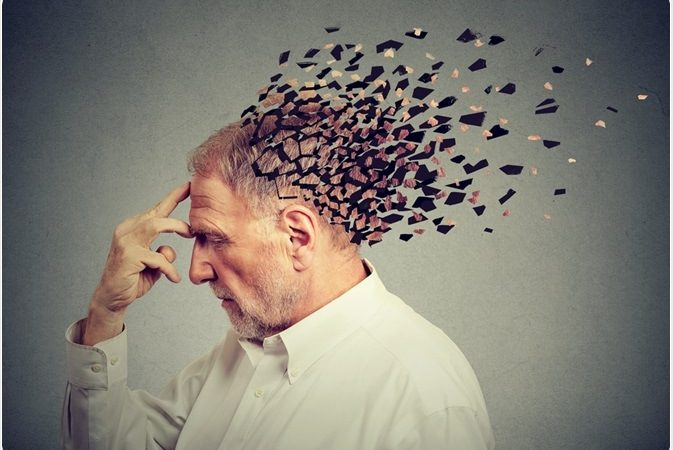 Early Alzheimer's: What it is, causes and how to identify